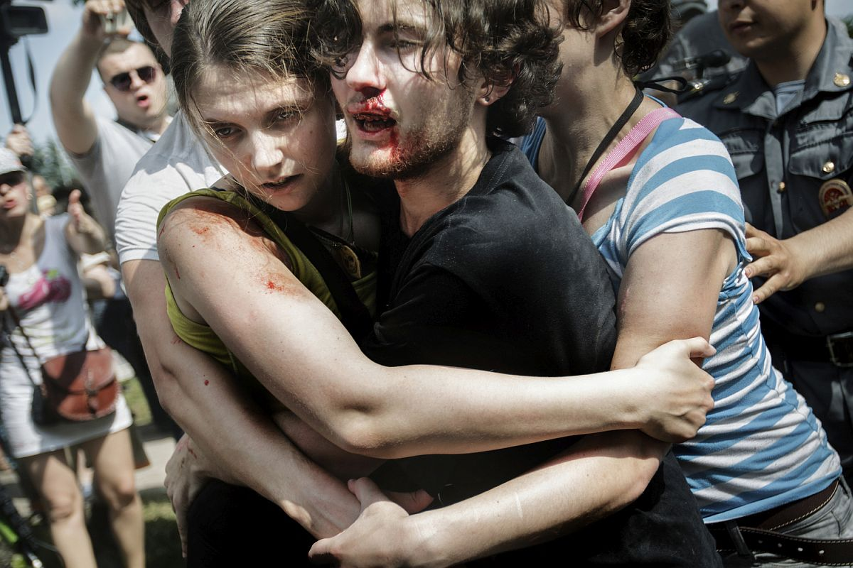 "Kirill Fedorov, 21, is bleeding from his face after national-conservative extremists surrounded, beat and kicked him and his friends while they were attending a Gay Pride rally in St. Petersburg. The group of friends try to stick together and seek cover behind the police as stones and eggs are thrown at them. The rally was declared illegal under the law banning ""gay propaganda"" and Kirill Fedorov and the other LGBT-activists were arrested and later taken to court."