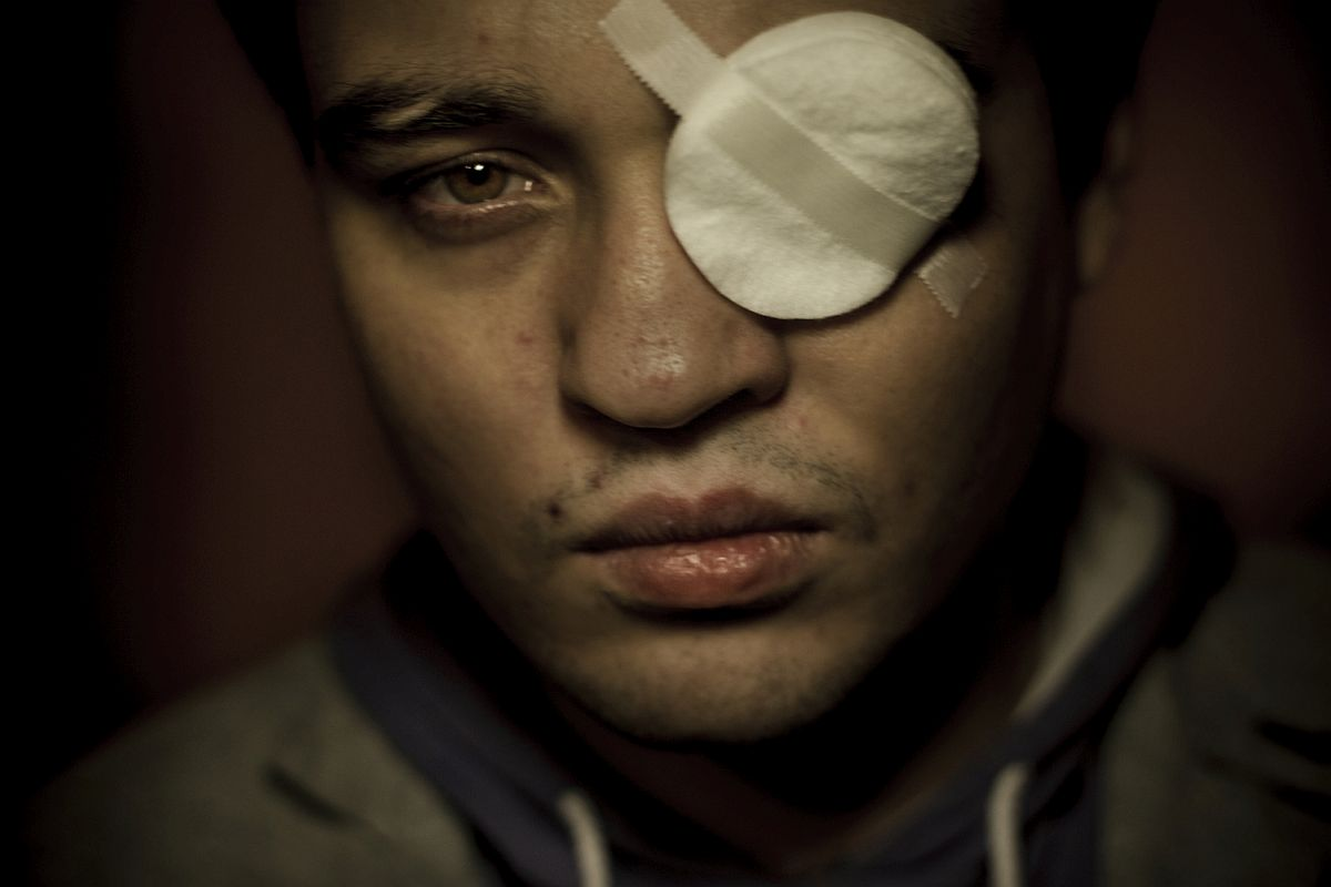 Dmitry Chizhevskiy, 27, had his left eye permanently destroyed by homophobes on 3 November 2013 when three armed men entered into a private meeting of homosexuals in St. Petersburg. They beat people with baseball bats and Dmitry Chizhevskiy was shot at point-blank range in his left eye with an air gun. The perpetrators have still not been found.