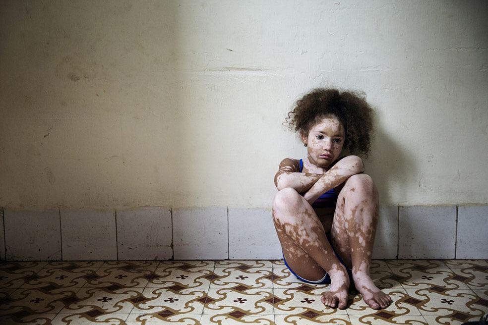 Vitiligo © Rosa Mariniello